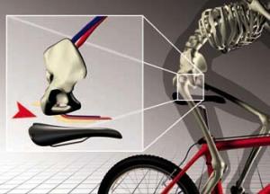 Боль от седла при езде на велосипеде.